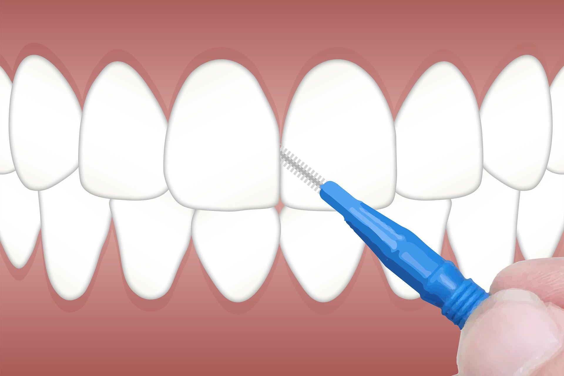 Jak poprawnie myć zęby?